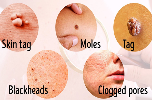 Moles, Warts And Tag Skins Removal: Wart Treatment Breastfeeding sets out ones birthmark